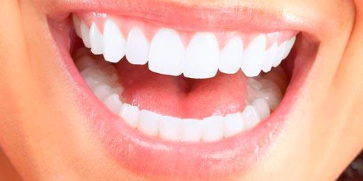 blanqueamiento dental en tenerife